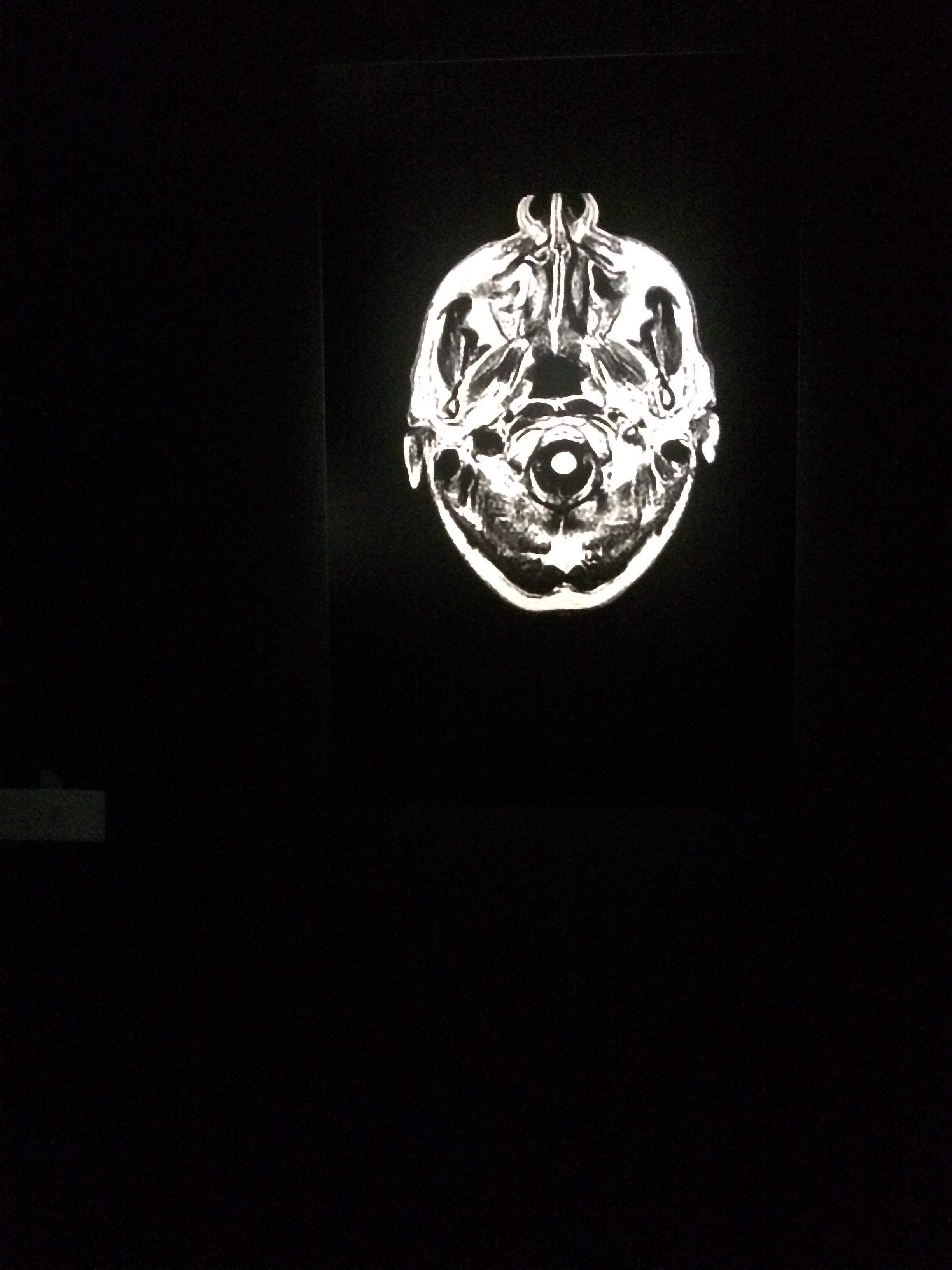 Houellebecq aime ses IRM